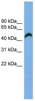 Western blot - Anti-APBB3 antibody (ab102631)