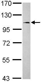Western blot - Anti-FCHO1 antibody (ab102994)