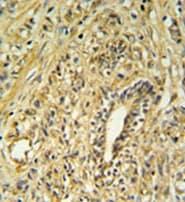 Immunohistochemistry (Formalin/PFA-fixed paraffin-embedded sections) - Anti-HSD17B2 antibody (ab103665)