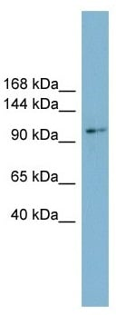 Western blot - Anti-CNNM2 antibody (ab103716)
