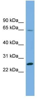 Western blot - Anti-DHFRL1 antibody (ab103891)