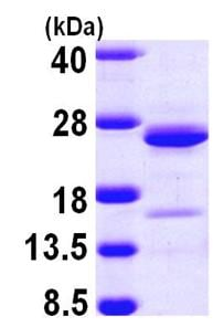 SDS-PAGE - Recombinant Human NCALD protein (ab103901)
