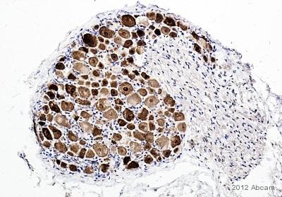 Immunohistochemistry (Formalin/PFA-fixed paraffin-embedded sections) - Anti-NeuN antibody - Neuronal Marker (ab104225)