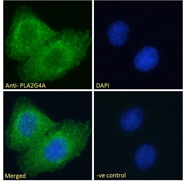 Immunocytochemistry/ Immunofluorescence - Anti-Phospholipase A2 antibody (ab104252)