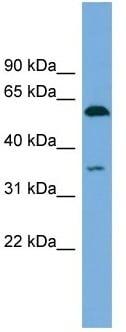 Western blot - Anti-SAAL1 antibody (ab104351)