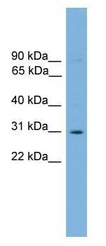 Western blot - Anti-ELF5 antibody (ab104410)