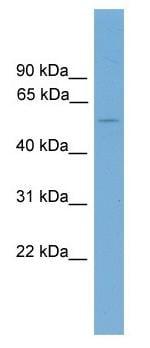 Western blot - Anti-FOXD2 antibody (ab104411)