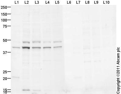 Western blot - Anti-NeuroD2 antibody (ab104430)
