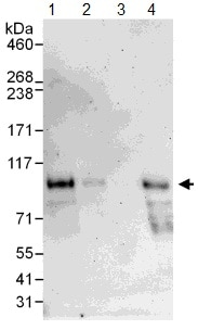 Western blot - Anti-Dishevelled 2 antibody (ab104438)