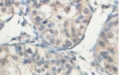 Immunohistochemistry (Formalin/PFA-fixed paraffin-embedded sections) - Anti-ABCB8 antibody (ab104498)