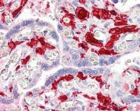 Immunohistochemistry (Formalin/PFA-fixed paraffin-embedded sections) - Anti-Factor XIIIa antibody (ab104559)