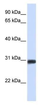 Western blot - Anti-BarX2 antibody (ab104666)