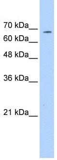 Western blot - Anti-CD42b antibody (ab104704)