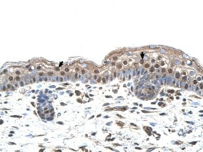 Immunohistochemistry (Formalin/PFA-fixed paraffin-embedded sections) - Anti-MUM1 antibody (ab104803)