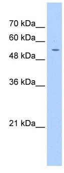 Western blot - Anti-PGS1 antibody (ab104815)