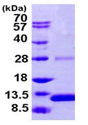 SDS-PAGE - Recombinant Human S100 alpha 2/S100A2 protein (ab104821)