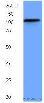Western blot - Anti-SIRT1 antibody [1F3] - Nuclear Marker (ab104833)