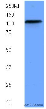 Western blot - Anti-SIRT1 antibody [1F3] (ab104833)
