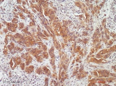 Immunohistochemistry (Formalin/PFA-fixed paraffin-embedded sections) - Anti-Hexokinase II antibody [3D3] (ab104836)
