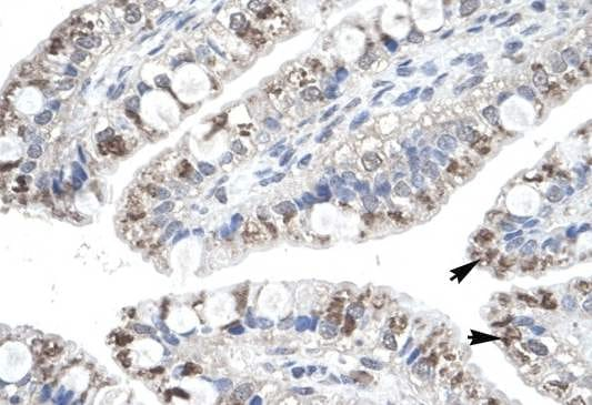 Immunohistochemistry (Formalin/PFA-fixed paraffin-embedded sections) - Anti-Macrophage Inflammatory Protein 4 antibody (ab104867)