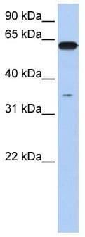 Western blot - Anti-KPNA6 antibody (ab104977)