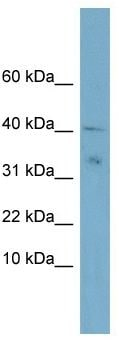 Western blot - Anti-NDUFV3 antibody (ab104983)