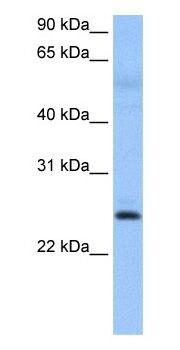 Western blot - Anti-ROPN1B antibody - N-terminal (ab105015)