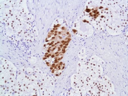 Immunohistochemistry (Formalin/PFA-fixed paraffin-embedded sections) - Anti-Androgen Receptor antibody [SP107] - N-terminal (ab105225)
