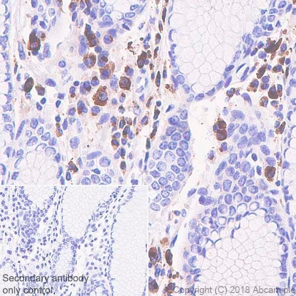 Immunohistochemistry (Formalin/PFA-fixed paraffin-embedded sections) - Anti-IGJ antibody [SP105] (ab105229)