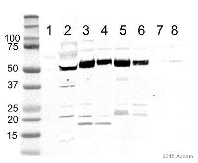 Western blot - Anti-OXCT1/SCOT antibody (ab105320)