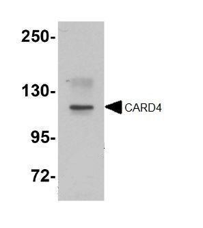 Western blot - Anti-CARD4 antibody (ab105338)