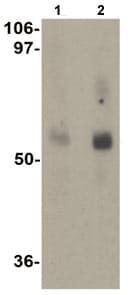 Western blot - Anti-MFSD2A/NLS1 antibody (ab105399)
