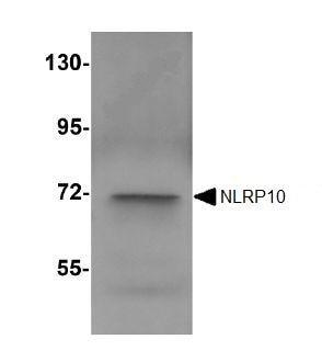 Western blot - Anti-NLRP10 antibody (ab105407)