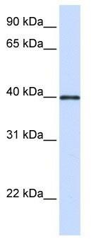 Western blot - Anti-GP2 antibody (ab105503)