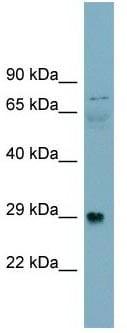 Western blot - Anti-DAG1 antibody (ab105504)