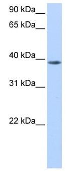 Western blot - Anti-NUDT13 antibody (ab105549)