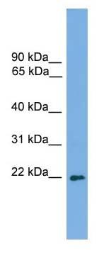 Western blot - Anti-MSC antibody (ab105569)