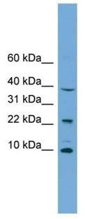Western blot - Anti-CHCHD8 antibody (ab105678)