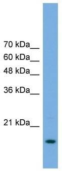 Western blot - Anti-POP5 antibody (ab105680)