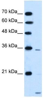 Western blot - Anti-SLC25A39 antibody (ab105683)