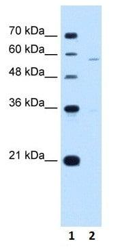 Western blot - Anti-PIGV antibody (ab105697)