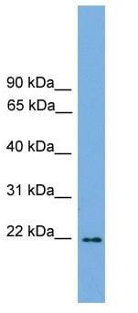 Western blot - Anti-JDP2 antibody (ab105736)