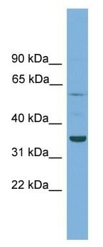 Western blot - Anti-C3orf67 antibody (ab105745)