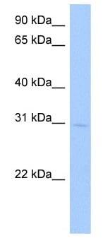 Western blot - Anti-GSTA5 antibody (ab105775)