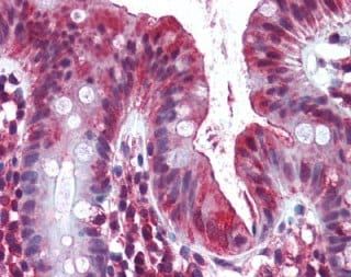 Immunohistochemistry (Formalin/PFA-fixed paraffin-embedded sections) - Anti-OLFM4 antibody (ab105861)