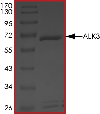 SDS-PAGE - Recombinant human BMPR1A protein (ab105907)