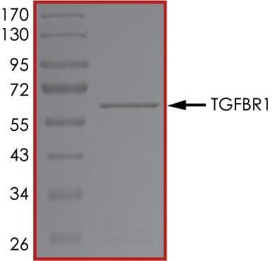 SDS-PAGE - Recombinant human TGF beta Receptor I protein (ab105908)