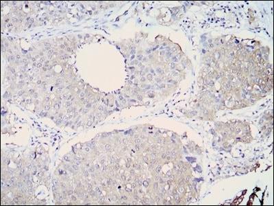 Immunohistochemistry (Formalin/PFA-fixed paraffin-embedded sections) - Anti-ALDH1A1 antibody [5A11] (ab105920)