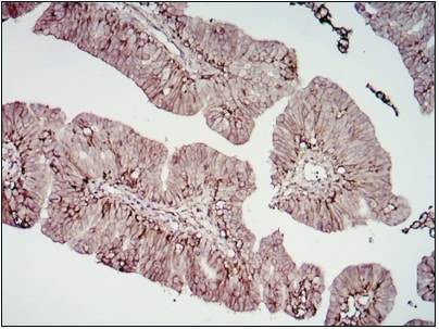 Immunohistochemistry (Formalin/PFA-fixed paraffin-embedded sections) - Anti-CD276 antibody [6A1] (ab105922)