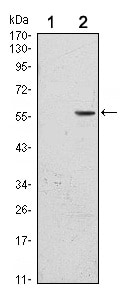 Western blot - Anti-CD276 antibody [6A1] (ab105922)